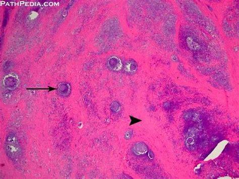 histopathology images  hashimoto thyroiditis