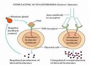 Graves' Disease - Palmitoylethanolamide Blog