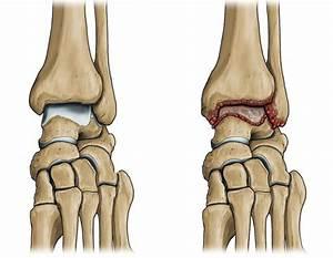 Мазь для суставов колена картинки