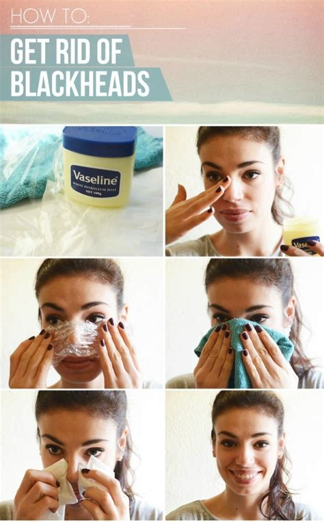 How To Get Rid Of Blackheads Permanently