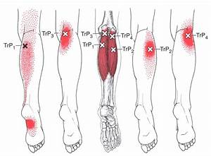 1000  Images About Myofascial    Triggers Points On