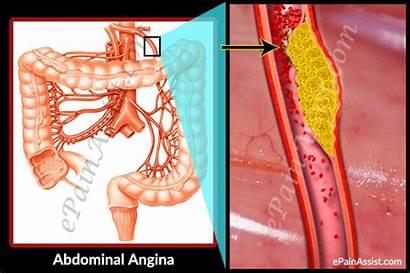 Angina Abdominal Pathophysiology Causes Treatment Pain Symptoms