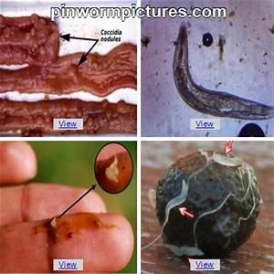 Pinworm Pictures | Photos of Threadworms