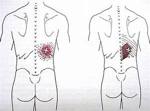 Serratus Pos Inf Trigger Point Diagram