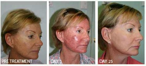 blue light photodynamic therapy blue light photodynamic therapy for acne iron blog