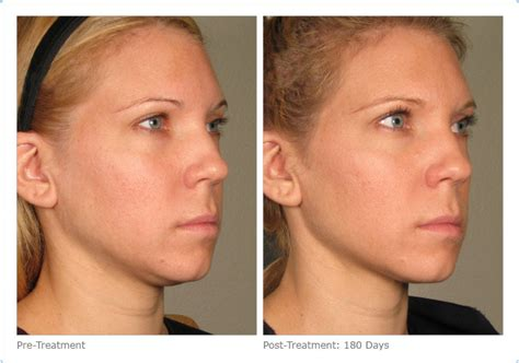 Does Ultherapy Really Turn Back Time? ; Review & Cost of