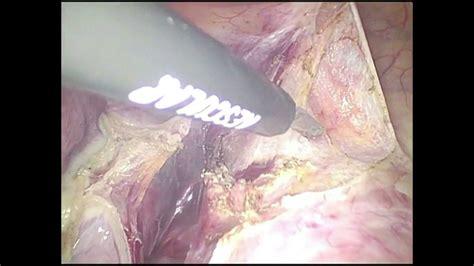 Laparoscopic Hysterectomy for Very Large Uterine Fibroid ...