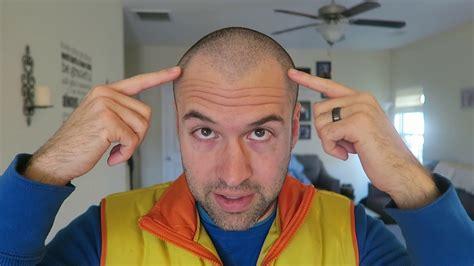 receding hairline buzz cut comparing  hair