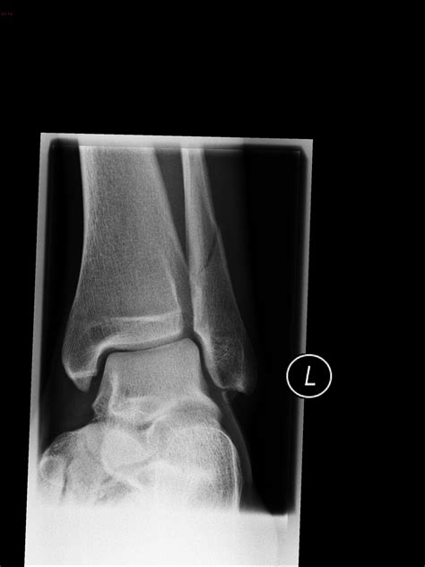 Ankle fracture - Weber C | Image | Radiopaedia.org