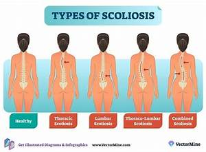 Free Types Of Scoliosis Anatomical Diagram  Branded