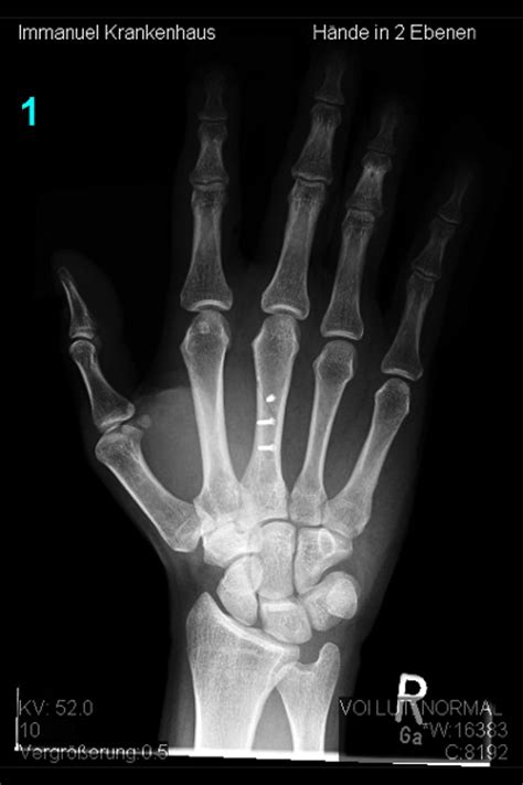 knochenbrueche  hand und fingern obere extremitaet hand