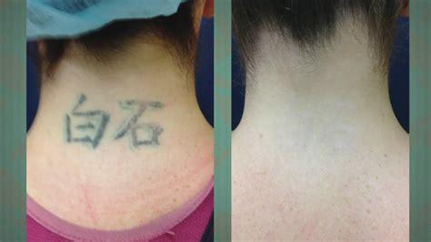 tattoo removal procedure  vein  skin center