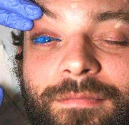 adolescentes tatuaje en el ojo