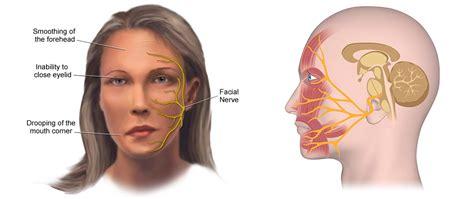 Facial Paralysis Treatment Kerala,india  Facial Nerve. Iphone Signs. Hand California Signs. Leader Signs Of Stroke. Victim Signs Of Stroke. Ily Signs Of Stroke. Bobby Signs. Disgusting Signs. Baby 4 Months Old Signs
