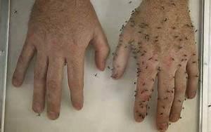 Hausmittel Gegen Mücken Im Zimmer : m ckenschutz selbstgemacht das beauty beast ~ Orissabook.com Haus und Dekorationen