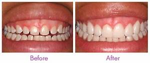 Dental Veneers; Dental Laminates