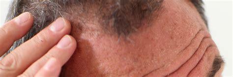 Hair Loss  Alopecia Platinum Dermatology