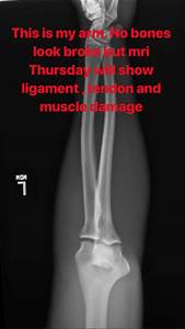 Pic: Mike Perry X-ray reveals no broken bones following ...