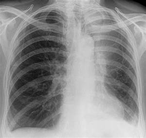 Abnormality On A Plain Film Chest Radiograph