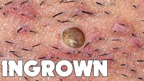 What Is A Hair by Ingrown Hair Removal What Is Ingrown Hair