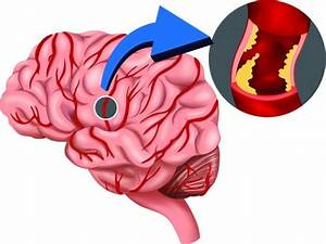 Reducing Incidence Of Stroke With Thrombolytics