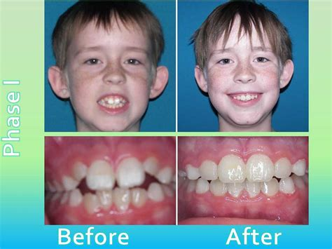 Before & After Acuity Orthodontics Dr Keith Wickizer. Online Store Builder Software Free. Hair Transplant Methods Car Insurance Wyoming. Personal Umbrella Insurance Quote. Refrigerator Repair Pasadena. Transcription And Translation. Microsoft Project 2010 Online. How Much Can I Mortgage Can I Qualify For. Neil Fiore The Now Habit Artistas Pop Latino