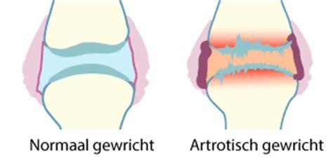 Artróza : příčiny, příznaky, diagnostika a léčba