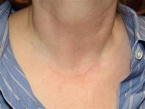 Thyroidectomy Scar   Otolaryngology Houston