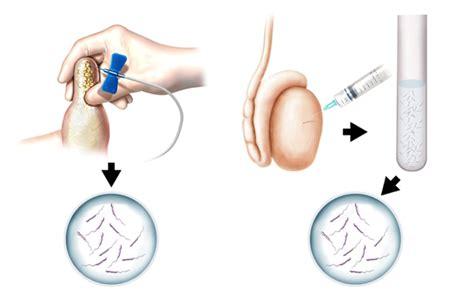 testicular sperm aspiration tesa treatment  jalgaon