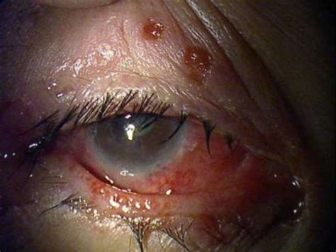 Herpes In The Eye Images Eye Infection Herpes Simplex Symptoms And Treatment