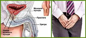 Родиола розовая от простатита