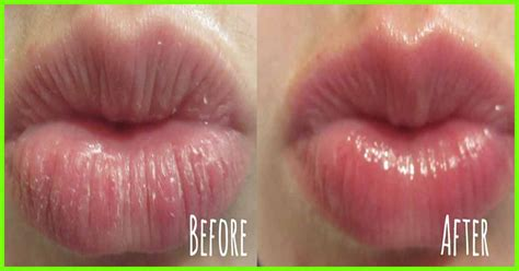 10 Amazing Benefits Of Using Glycerin For Lips