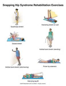 Snapping Hip Syndrome Exercises