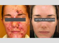 Aldactone For Acne New, Powerful And Effective Easy