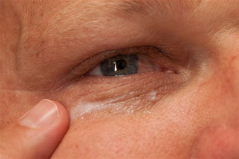 Eye A H C use of preparation h for eye bags leaftv