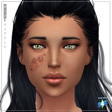 Cc Request Facial Burn Scar For Child To Elder Sims 4