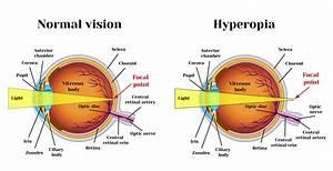 Bateseyeexercises Com     Hyperopia Exercises