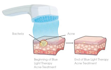 best acne light therapy what is blue light therapy