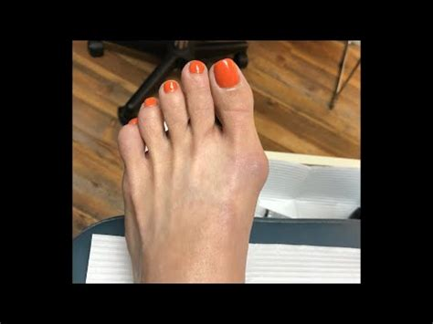 The foot is an intricate part of the body, consisting of 26 bones, 33 joints, 107 ligaments, and 19 muscles. Minimally Invasive foot surgery   The Tampa Podiatrist