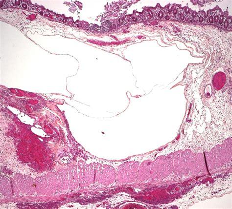 digestive pneumatosis humpathcom human pathology