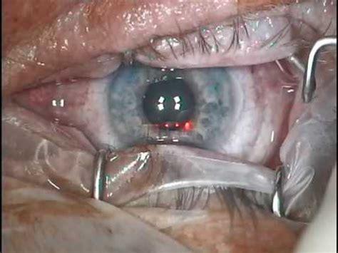 meine lasik laser op bei care vision