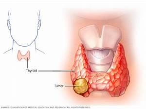 Thyroid Cancer Disease Reference Guide