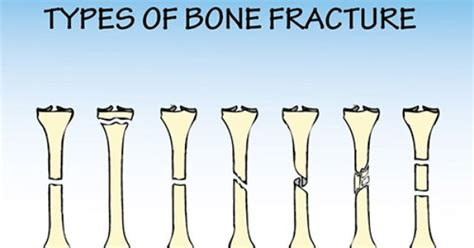 Types And Causes Of Bone Fractures