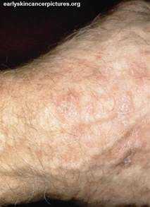 Early Basal Cell Skin Cancer