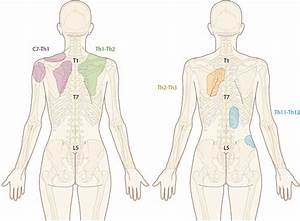 Radiation Pattern Of Thoracic Facet Pain   Illustration
