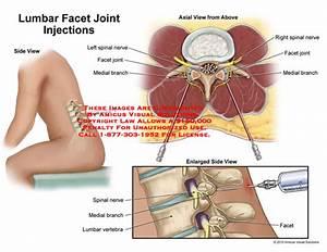 Lumbar Facet Joint Injections