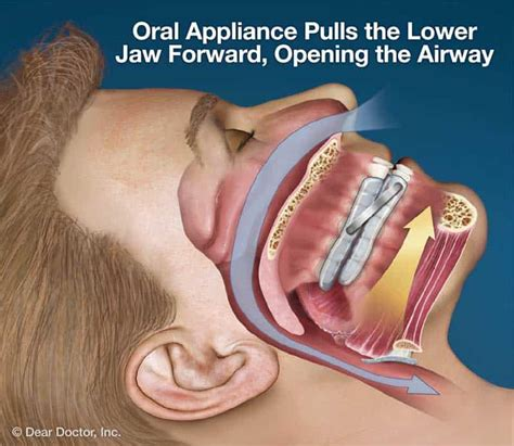 oral appliance therapy downtown toronto dentist