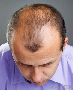 Hairstyles For Hair Loss In Front HairStyles