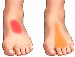 arthritis pain relief for hands