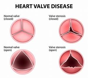 What Are Heart Valve Flaps